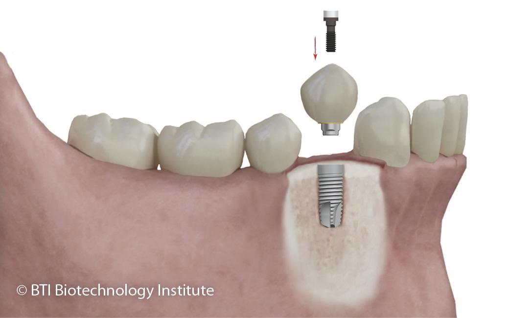 Resultado de imagen de corona suelta sobre implantes